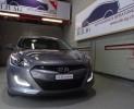 ALB Leasing ohne Bank Hyundai